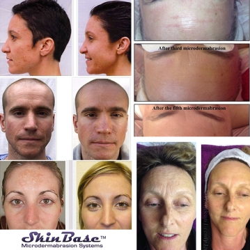 Before and after shots - skinbase